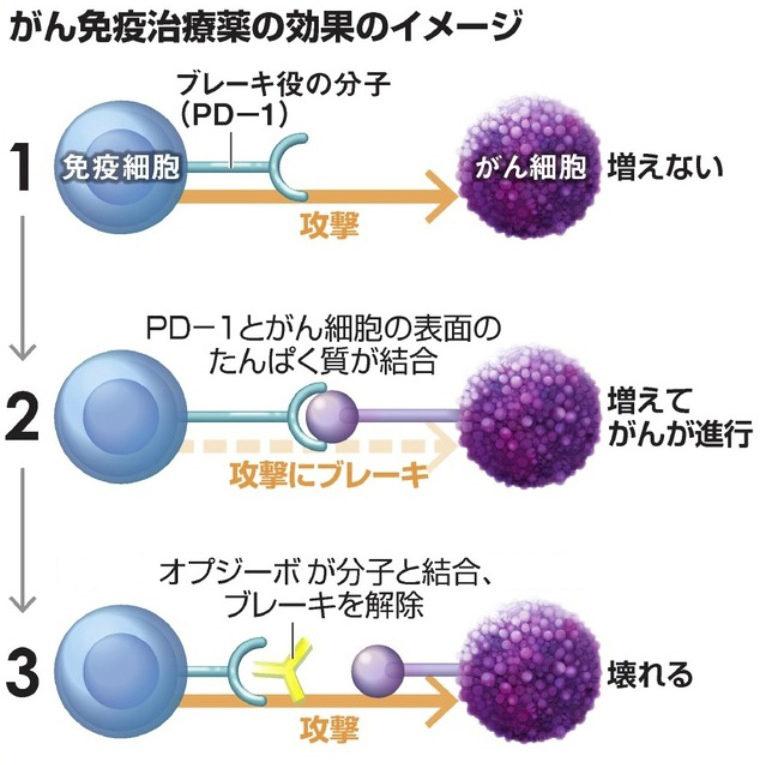 がん治療薬で期待の持てる新薬剤はオプジーボ