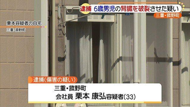 三重県菰野町のアパートで父親が6歳の男児の背中を蹴り重傷